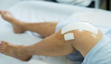 knee chondroplasty pricing