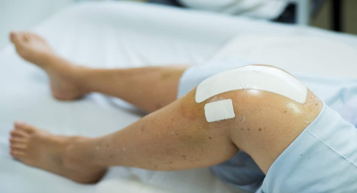 knee chondroplasty pricing