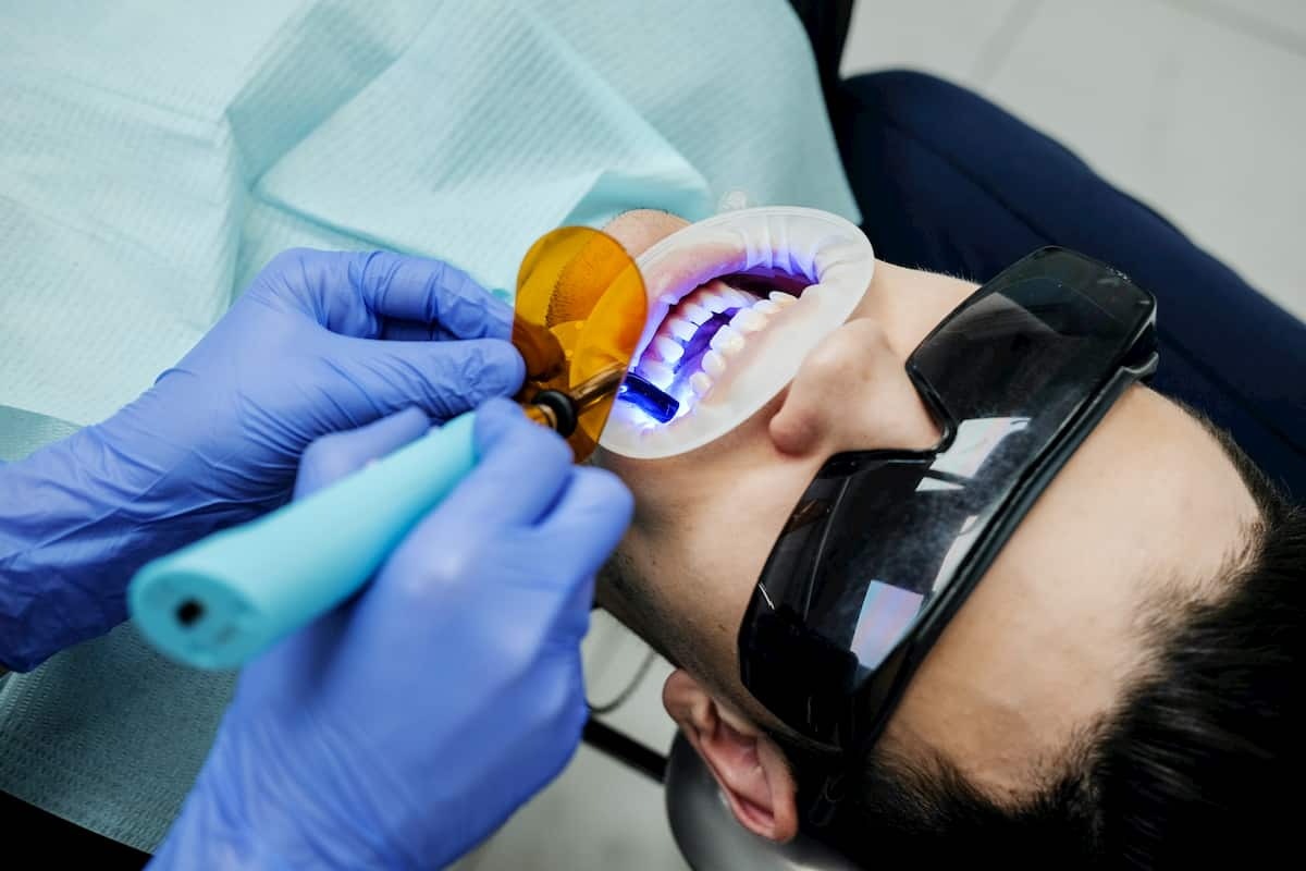 Dental scanners