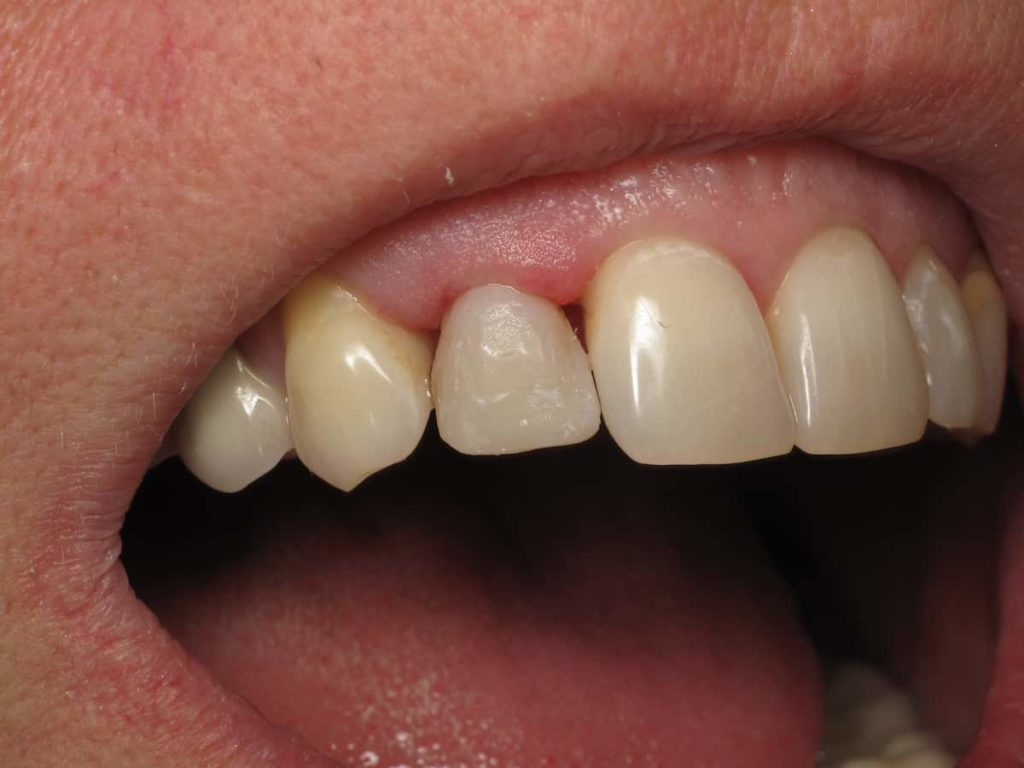 Receding Gums Around the Crowned Tooth
