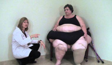 lipedema fat vs regular fat