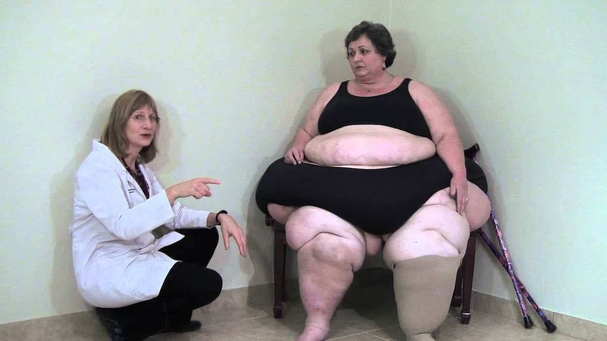 lipedema fat vs regular fat