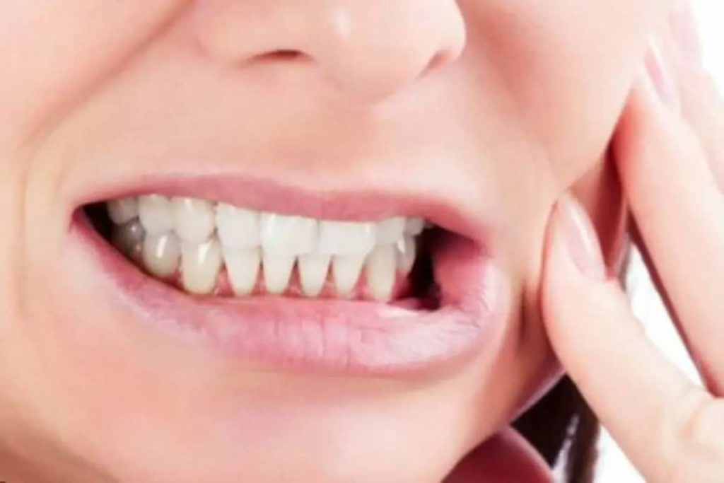 Get Help for Teeth Grinding Today