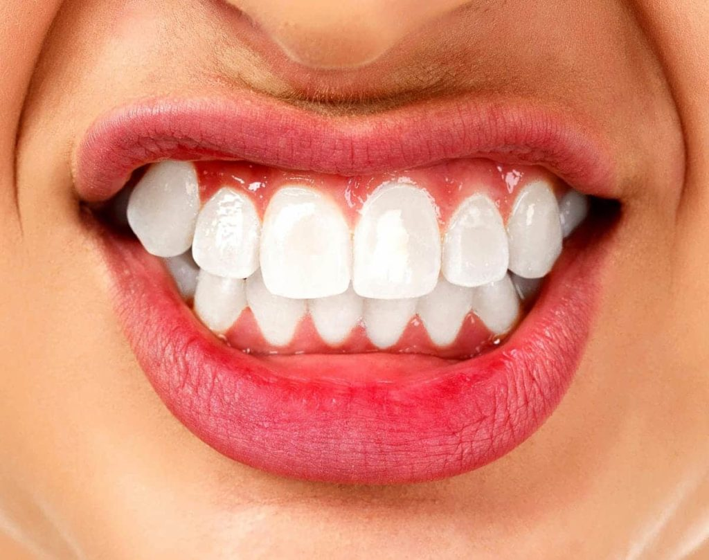 How Can People Prevent Teeth Grinding